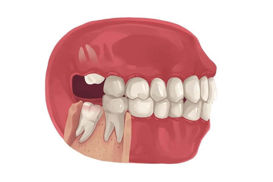 Răng khôn không có chức năng gì, ngược lại còn gây đau đớn và biến chứng cho sức khoẻ người bệnh