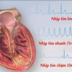 Rối loạn nhịp tim có nguy hiểm không?