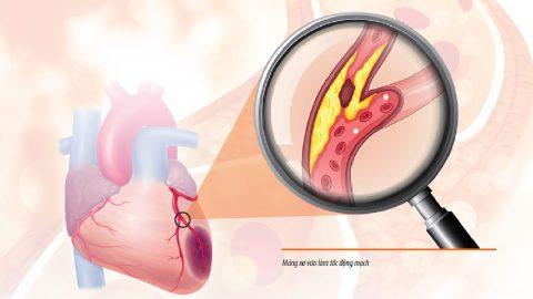 Tắc động mạch vành: Nguyên nhân và mức độ nguy hiểm