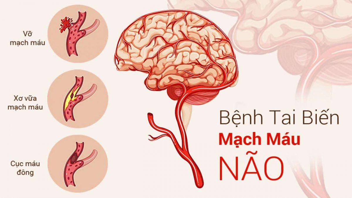 Triệu chứng tai biến mạch máu não và cách phòng bệnh