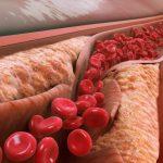 Thiểu năng vành là gì? Cách chẩn đoán và điều trị
