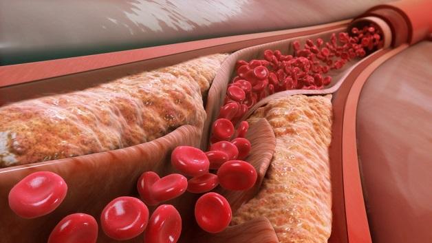 Thiểu năng vành là tình trạng suy giảm chức năng dẫn máu tới nuôi cơ tim của mạch vành, thường xảy ra khi mạch vành bị tắc hẹp bởi các mảng xơ vữa.