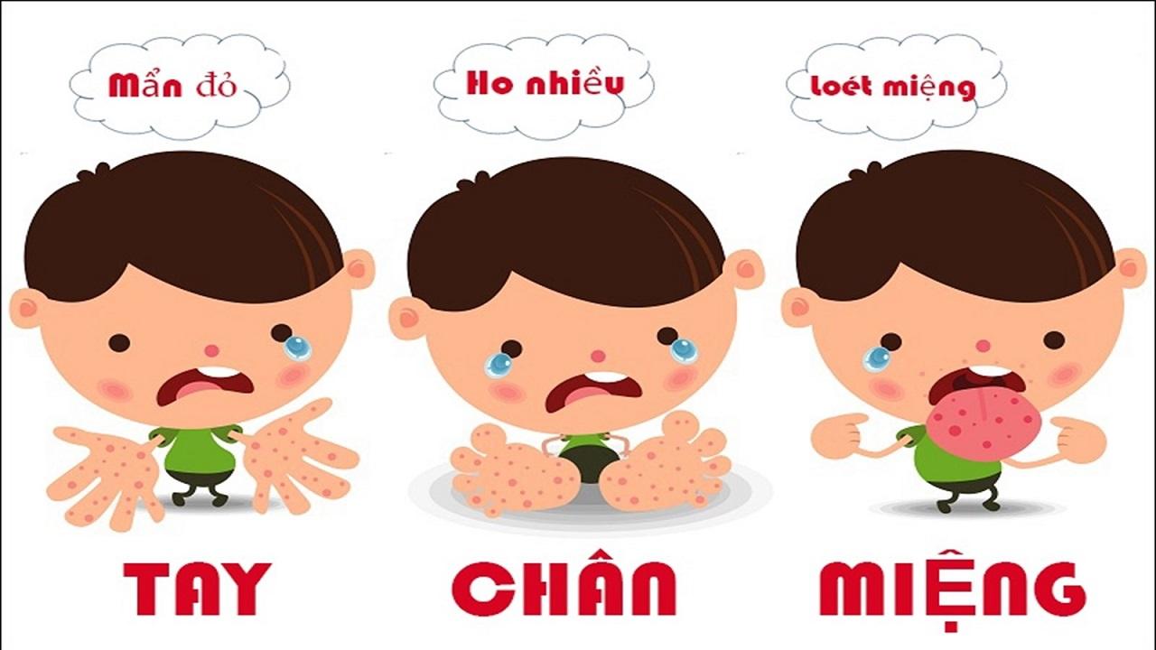 Bệnh tay chân miệng là bệnh lý phổ biến ở trẻ , thường xuất hiện vào thời điểm giao mùa