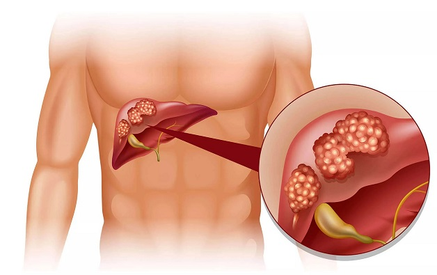 Phác đồ điều trị ung thư gan nguyên phát là gì