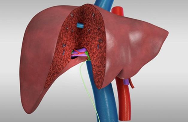 Phác đồ điều trị ung thư gan bằng ghép gan