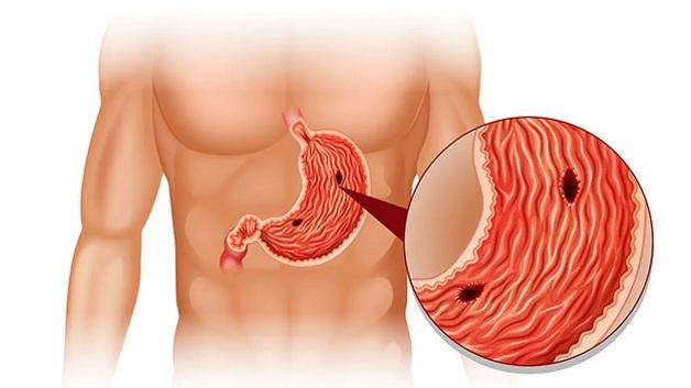 Nguyên nhân và cách điều trị ung thư dạ dày - viêm dạ dày