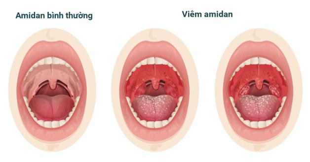 hình ảnh viêm amidan