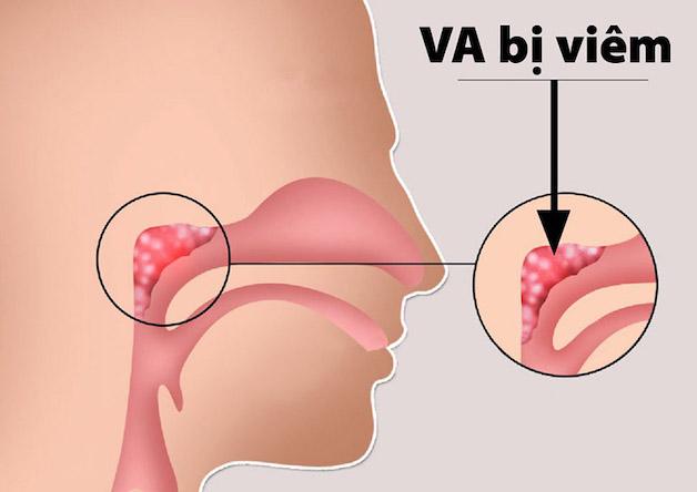 khi các vi khuẩn tấn công cơ thể với số lượng lớn thì các tế bào bạch cầu tại VA không đủ sức chống đỡ gây ra viêm VA ở trẻ.