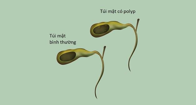 Các triệu chứng polyp túi mật