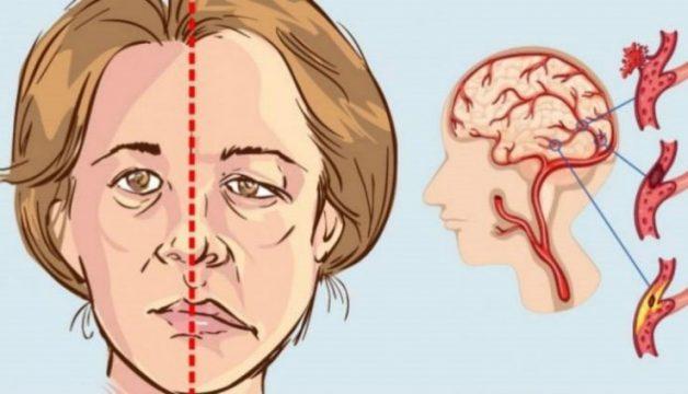 Một trong các triệu chứng là miệng người bệnh bị méo lệch sang một bên
