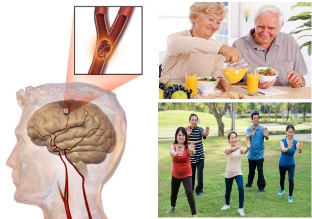 Thực hiện và đảm bảo duy trì thói quen sinh hoạt lành mạnh, có lợi sẽ giúp ngăn ngừa các triệu chứng tai biến mạch máu não
