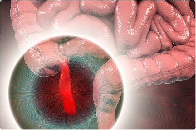 Các triệu chứng viêm ruột thừa cấp