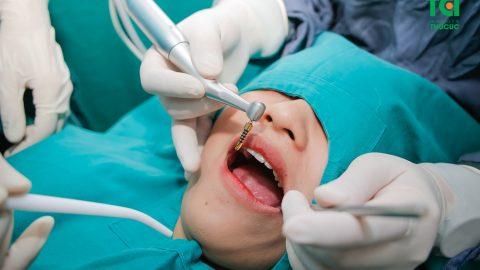 Trồng răng implant có đau không? Mất bao lâu hoàn thiện?
