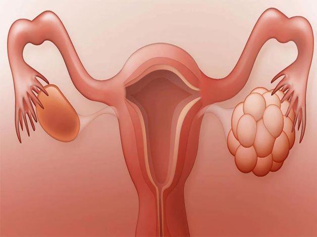 U nang buồng trứng phải 40mm điều trị như thế nào cho hiệu quả là thắc mắc của rất nhiều người bị mắc bệnh u nang buồng trứng.