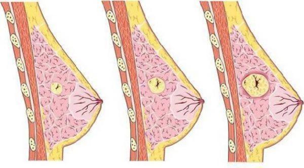 U nang tuyến vú là những túi nhỏ hình thành ở bên trong mô tuyến vú và thường được phát hiện ở nửa trên của vú.