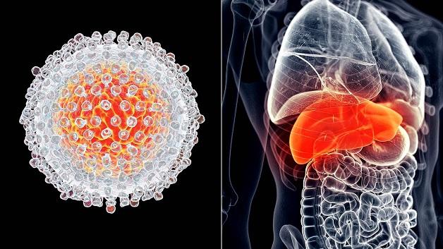 Bệnh viêm gan C gây ra nhiều hệ lụy nghiêm trọng cho sức khỏe người bệnh