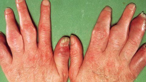 Viêm khớp vảy nến với 9 triệu chứng thường gặp nhất