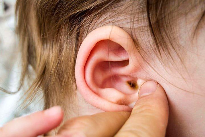 Khi bị viêm ống tai ngoài, trẻ thường bứt tai, tai có mùi hôi và có thể chảy mủ