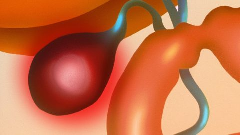 Viêm túi mật có nguy hiểm không? Chẩn đoán và điều trị