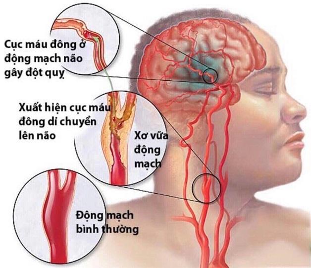Xơ vữa động mạch cảnh là hiện tượng dày lên và xơ cứng của động mạch cảnh do sự lắng đọng cholesterol, canxi và các chất khác.