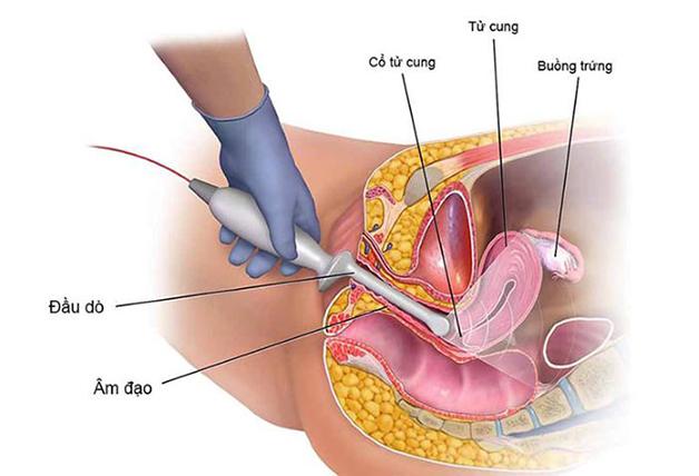 Siêu âm tử cung phần phụ