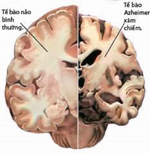 Bệnh mất trí nhớ alzheimer biểu hiện thế nào