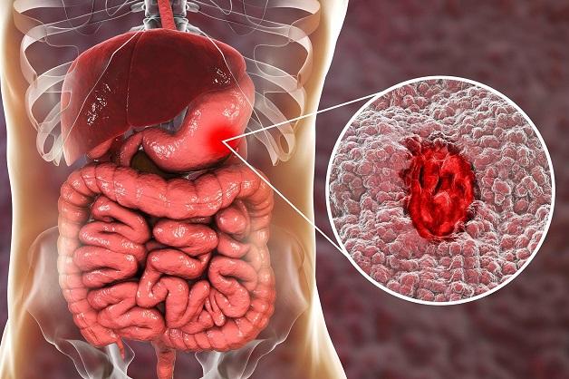Viêm loét dạ dày là bệnh tiêu hóa phổ biến ở người cao tuổi