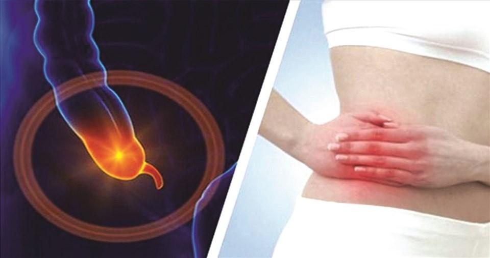 Biểu hiện của viêm ruột thừa cấp rõ rệt nhất là cơn đau bụng