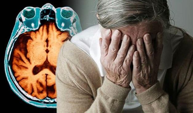 biểu hiện và triệu chứng bệnh azheimer là gì?