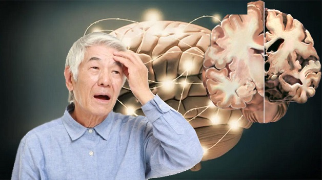 hội chứng alzheimer sống chung hay chữa khỏi