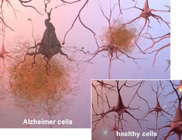 khám bệnh Alzheimer ở đâu