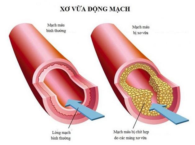 Nguyên nhân bệnh mạch vành chủ yếu được các chuyên gia xác định là do xơ vữa động mạch vành.