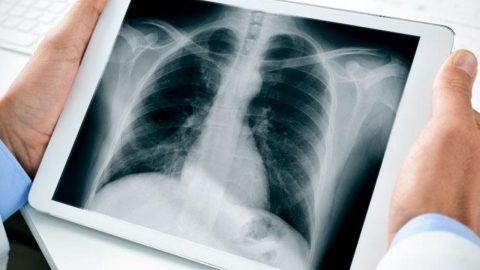 Sự nguy hiểm của việc chụp X quang khi mang thai 4 tuần