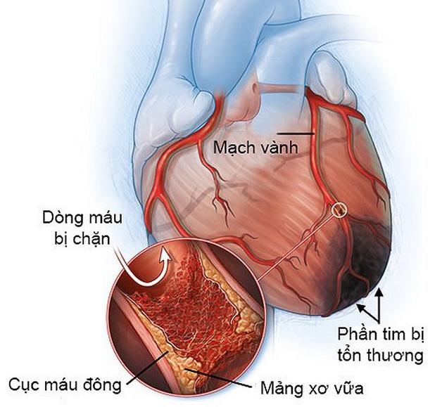 Bệnh mạch vành có thể gây ra những triệu chứng khó chịu hoặc gây nguy hiểm tới tính mạng người bệnh.