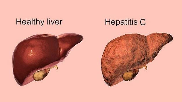 Bệnh viêm gan C có tỷ lệ phát triển thành mạn tính rất cao