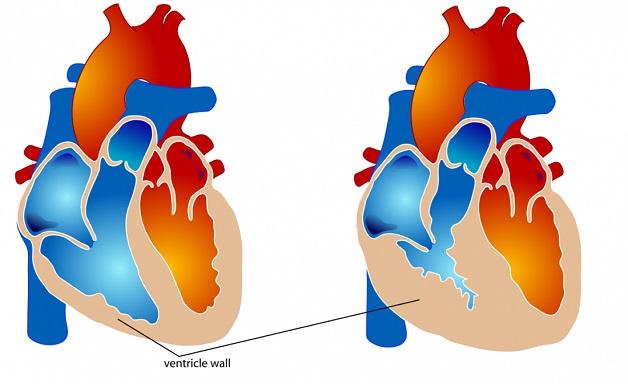 Phì đại thất phải là một trong những biến chứng của bệnh lý ở van động mạch phổi.