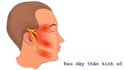 Đau dữ dội vùng mặt coi chừng viêm dây thần kinh số 5