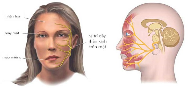 biểu hiện viêm dây thần kinh số 7