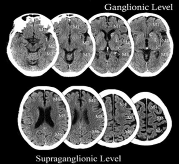 Chụp cắt lớp sọ não dùng tia X để chụp hình ảnh bên trong của đầu và mặt