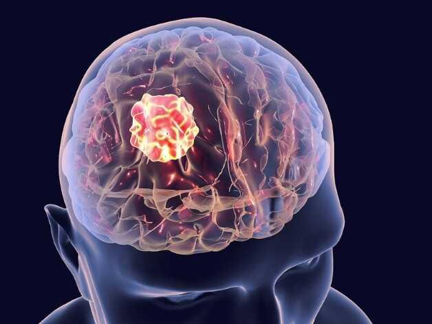 Chụp CT sọ não được chỉ định nhằm chẩn đoán, theo dõi các bệnh lý vùng đầu