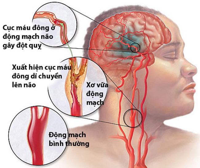 Chụp MRI mạch máu não giúp chẩn đoán sớm nhiều bệnh lý
