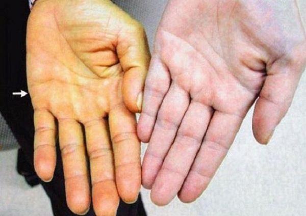 Vàng da là một trong những dấu hiệu viêm gan C điển hình