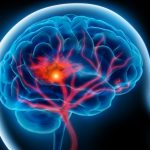Hiểu về cơn đột quỵ thoáng qua để bảo vệ sức khỏe và tính mạng