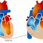 Hẹp van động mạch phổi: Triệu chứng và biến chứng