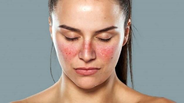 Lupus ban đỏ là một trong những nguyên nhân hẹp van tim 2 lá mà ít ai ngờ tới.