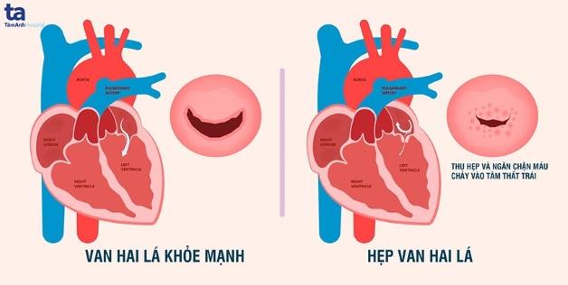 Hẹp van tim chủ yếu xảy ra với van 2 lá và van động mạch chủ.