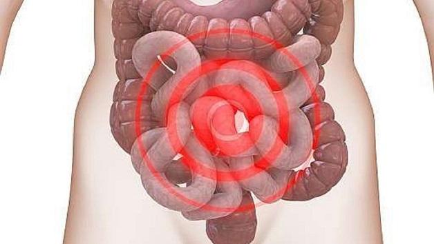 Hội chứng ruột bị kích thích là gì?