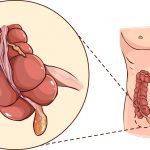 Mổ nội soi ruột thừa có đau không, hết bao nhiêu tiền?