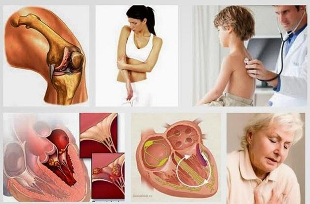 Bệnh thấp tim thực chất là một bệnh tự miễn do các kháng thể do cơ thể sản sinh ra để chống lại các liên cầu khuẩn nhóm A tấn công nhầm vào khớp, cơ tim, van tim,...