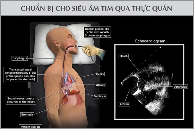 Trong siêu âm về tim qua thực quản, người bệnh phải nuốt một đầu dò có gắn sợi dây cáp quang mỏng có kết nối với máy siêu âm.
